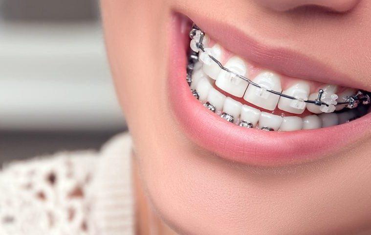 5da11cbbf Quatro coisas que todo mundo que usa aparelho dental não deve esquecer